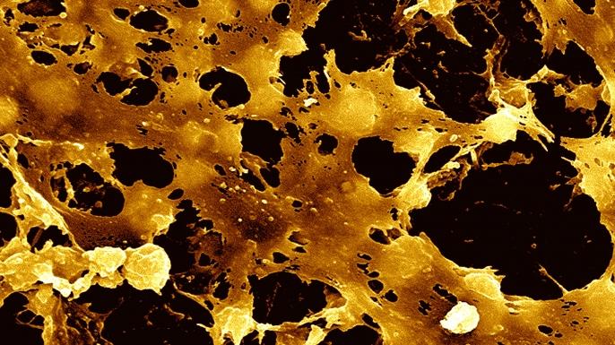Staphylococcus Aureus Sem