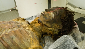 The mummified body of the Egyptian princess Ahmose-Meryet-Amon is prepared for the CT Scan.