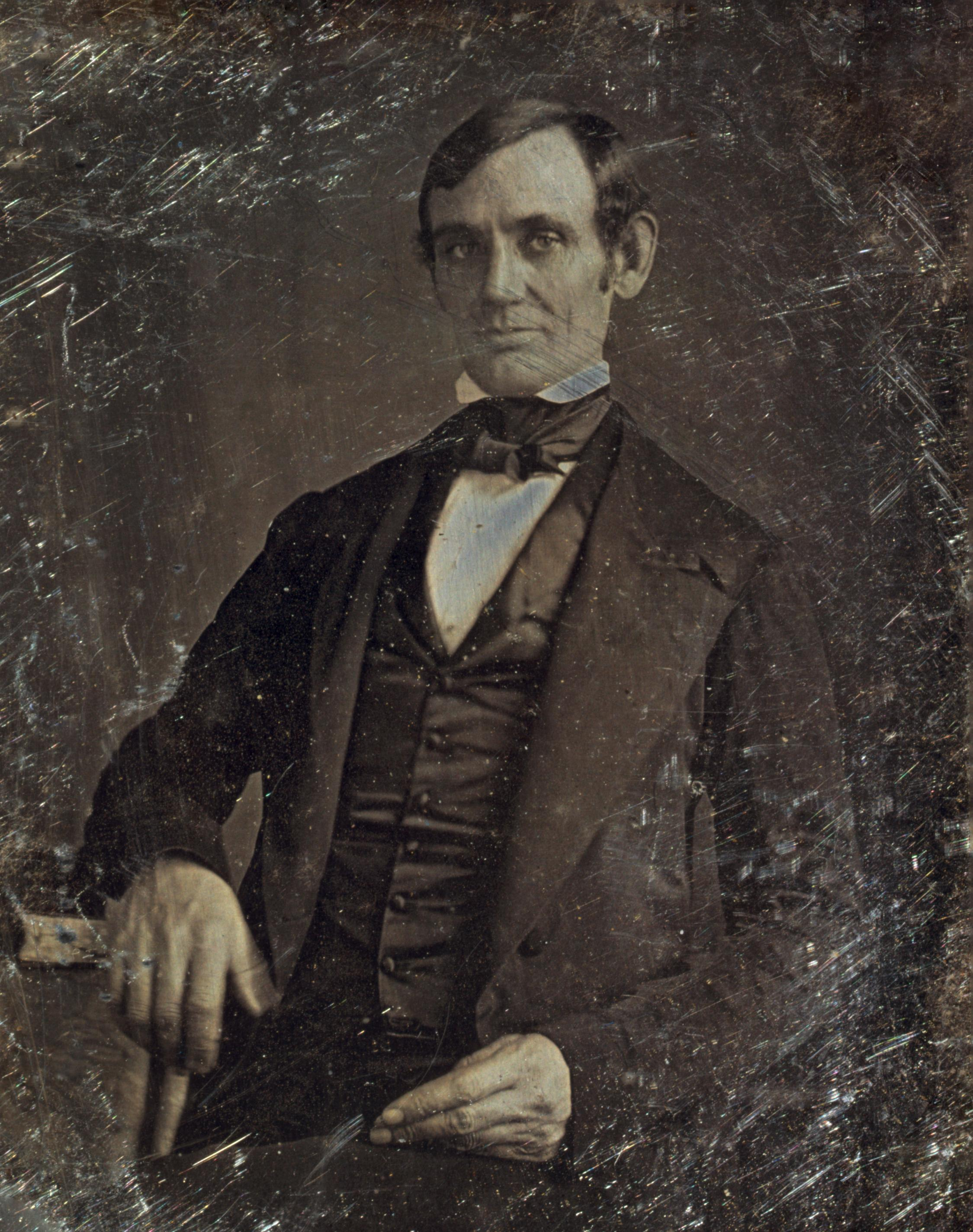 historical figures posthumously diagnosed illnesses abraham lincoln circa 1846