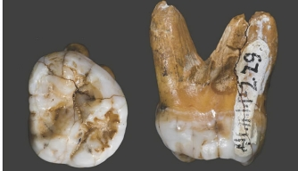 DNA in Tooth Yields New Insight Into Ancient Human Cousin