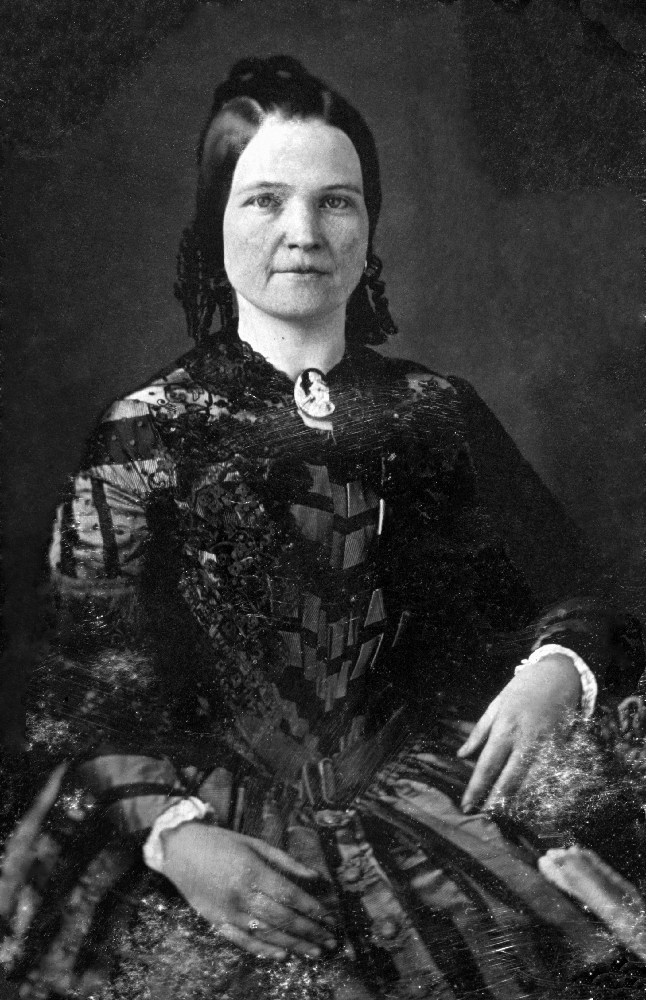Mary Todd Lincoln May Have Had Pernicious Anemia History