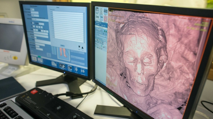 Scanning the 2,700-year-old mummy, Ta-Kush, at KIMS Hospital. (Credit: Paul Dixon)
