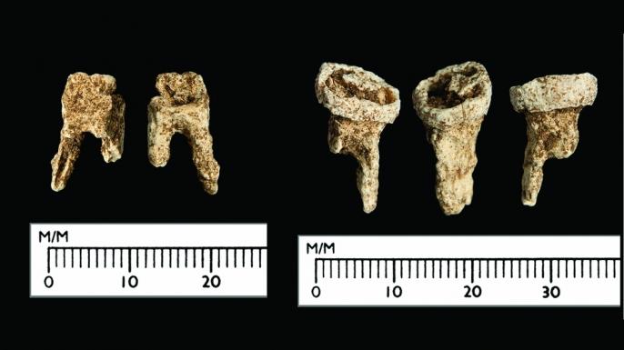 The Viking's teeth. (Credit: Antiquity Publications Ltd, 2017)