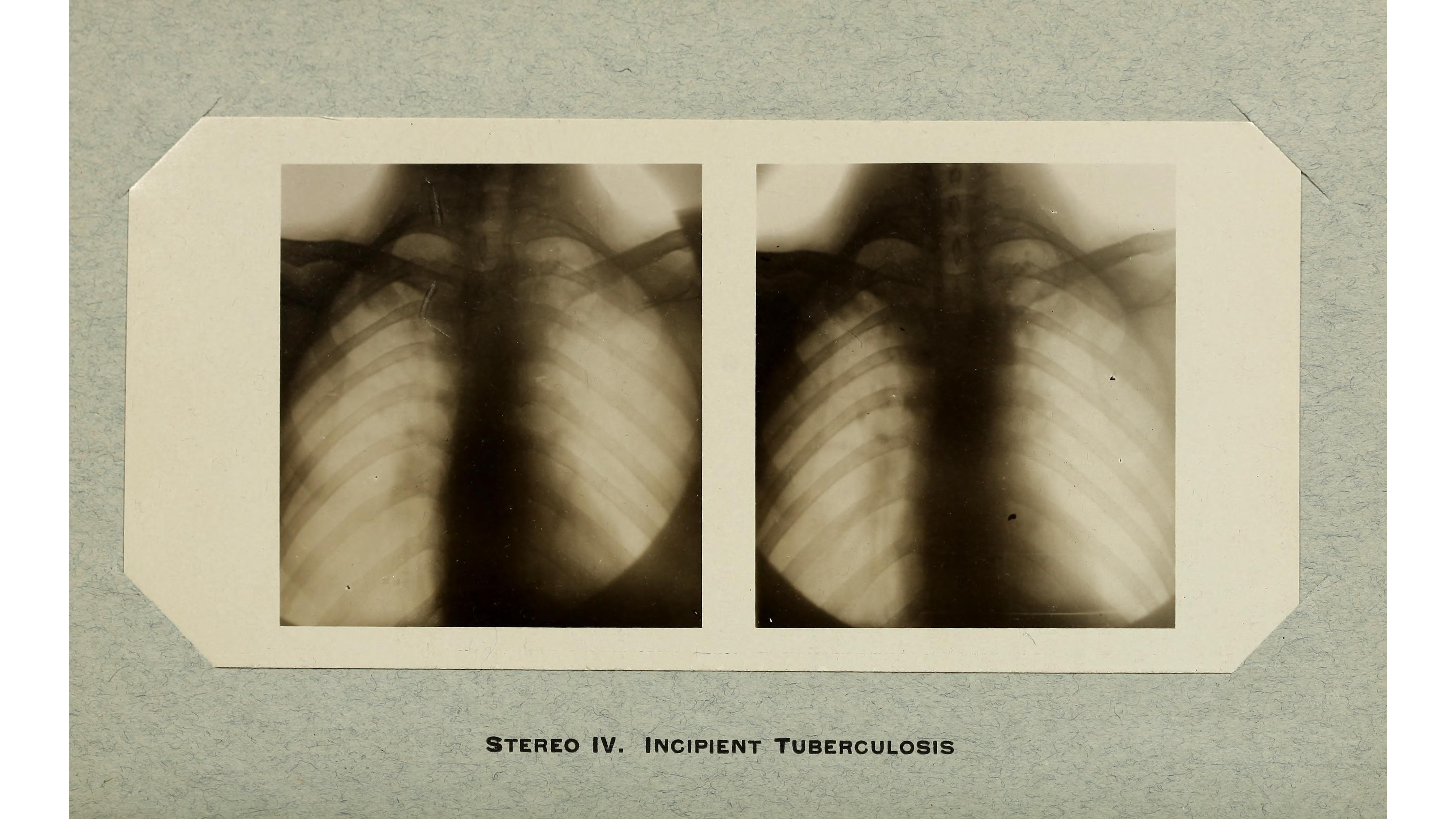 1909 X Ray From The American Quarterly Of Roentgenology Of Tuberculosis Of The Lung