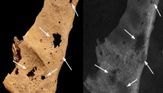 Photo depicting sternum of Amara West skeleton with cancerous bone lesions.