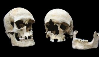 Microbe Behind Black Death Also Caused Devastating Plague 800 Years Earlier