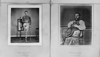 The Civil War Doctor Who Proved Phantom Limb Pain Was Real