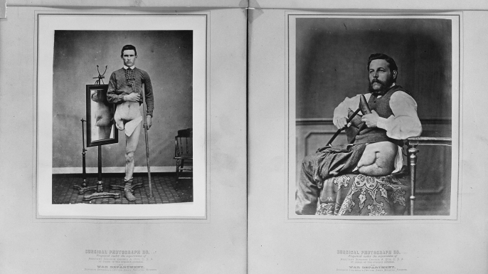 Photographs of two men displaying amputated leg wounds, circa 1860s. On the left is Eben Smith, Civil War veteran, and John Schranz, Private, 7th Austrian Feldjagers, on the right. (Credit: The Library of Congress)