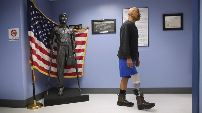 U.S. Military veteran and amputee Lloyd Epps after doctors serviced his prosthetic leg at the Veterans Administration (VA), hospital in Manhattan, New York City, 2014. (Credit: John Moore/Getty Images)