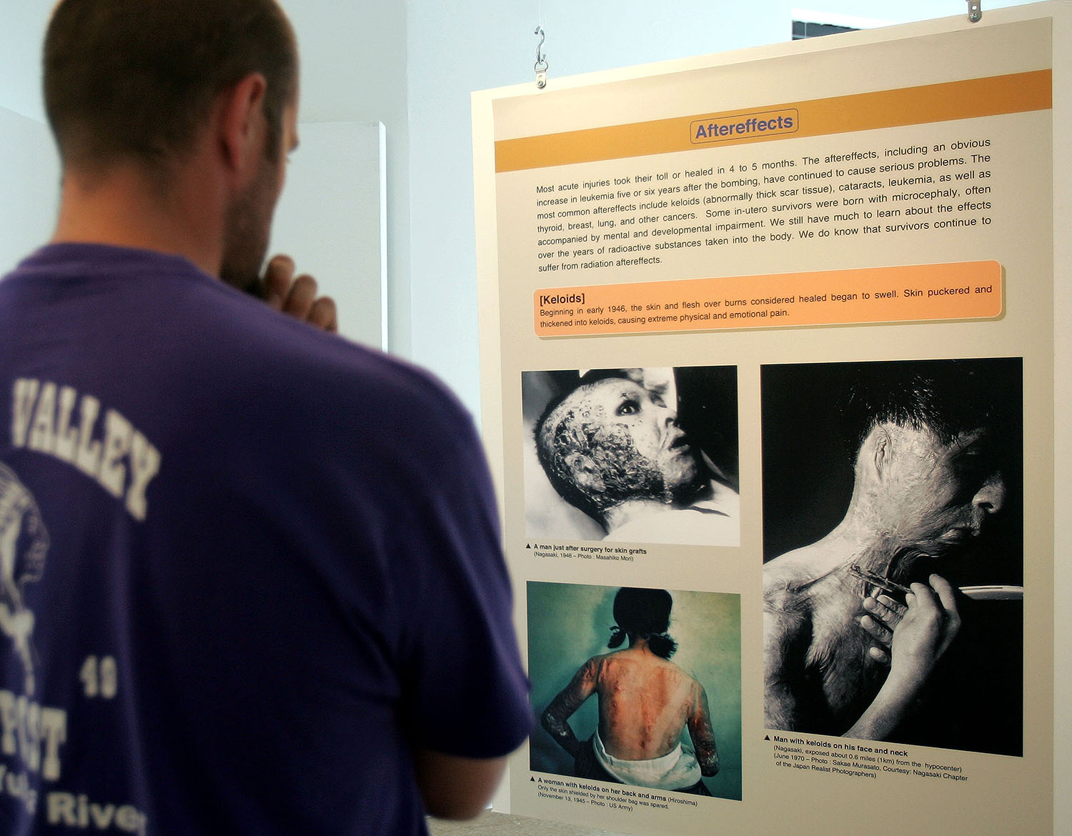 """An informational panel describing the aftereffects of the A-Bomb at an exhibit titled """"60 Years Later: The Hiroshima-Nagasaki A-Bomb Exhibition"""" at Chicago's Peace Museum, in collaboration with the Nagasaki Peace Memorial Hall and the Hiroshima Peace Memorial Museum, in 2005. (Credit: Tim Boyle/Getty Images)"""