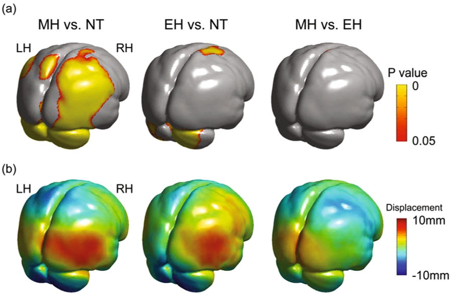 Comparisons of the brain surface morphology among Neanderthal (NT), early Homo sapiens (EH) and modern Homo sapiens (MH). The upper row shows the differences in brain surface area. The lower level shows the morphological difference in the direction perpendicular to the tangential surface. (Credit: Spring Nature/Scientific Reports)